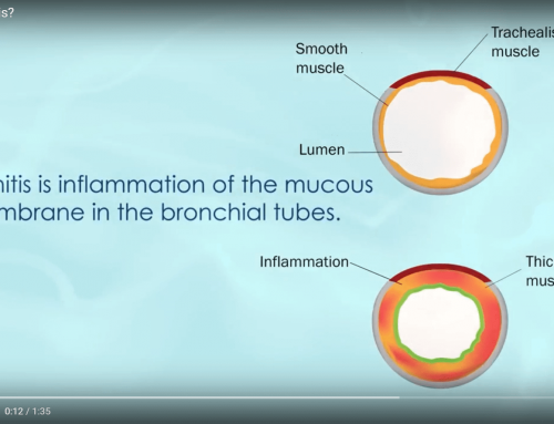 Video: What Is Bronchitis? Is Bronchitis Contagious?
