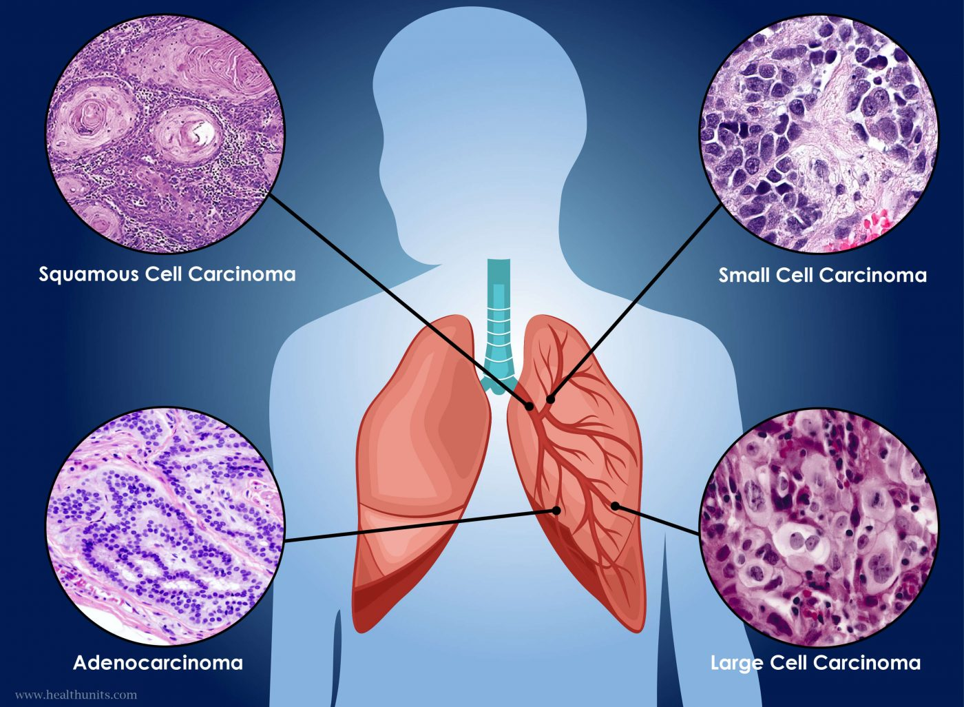 lung cancer essay Great collection of paper writing guides and free samples ask our experts to get writing help submit your essay for analysis.